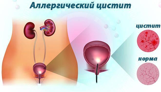 Алергічний цистит: симптоми і лікування