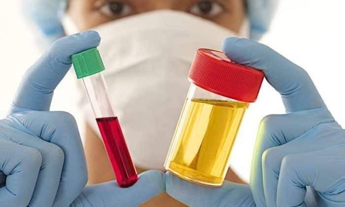 Аналіз крові при циститі — Нирки