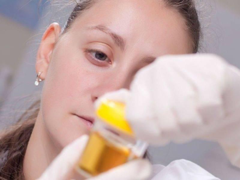 Аналіз сечі при циститі у жінок Нирки