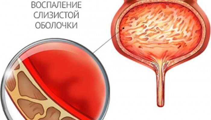 Березові нирки при циститі