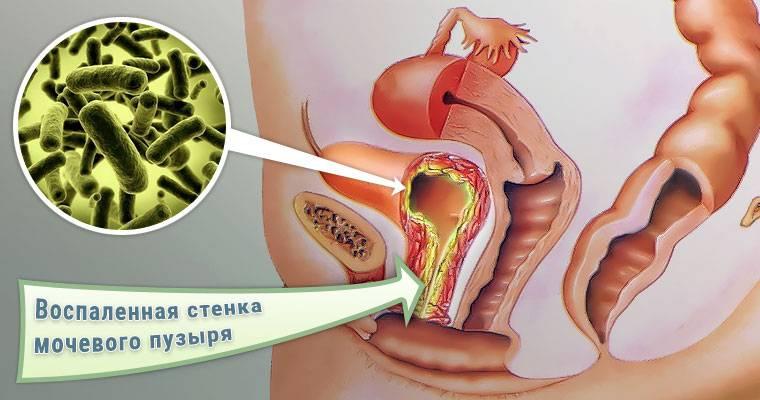 Цистит і вагітність. Причини, симптоми і лікування циститу у вагітних