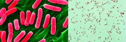 Цистит: які бактерії викликають