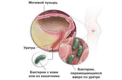 Діагностика циститу – аналізи при циститі