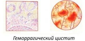 gemorag chniy cistit simptomi l kuvannya u zh nok 1 300x145 - Симптоми і лікування циститу у жінок препаратами: таблетки від циститу, антибіотики та інші ліки