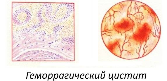 gemorag chniy cistit simptomi l kuvannya u zh nok 1 - Геморагічний цистит симптоми і лікування у жінок