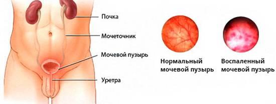 Гострий цистит симптоми та основні методи лікування