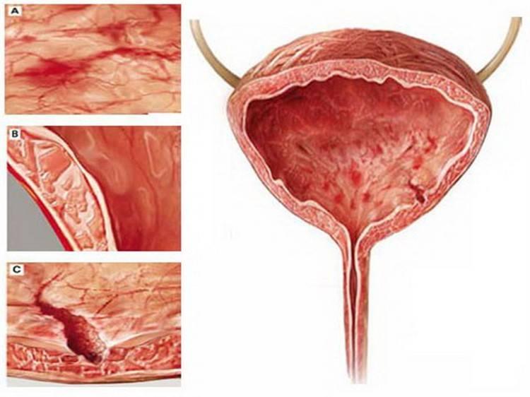 Гострий геморагічний цистит симптоми та методи терапії