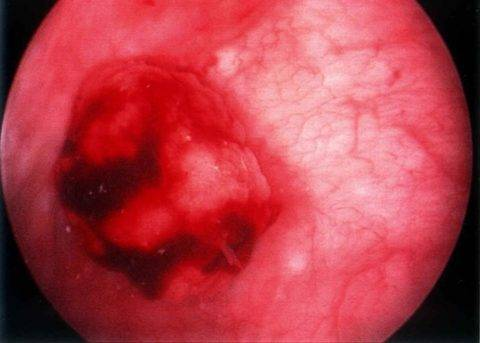 Кров у сечі при циститі у жінок: чому може бути, симптоми, що робити, лікування