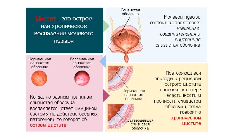 Лікування циститу при цукровому діабеті у жінок