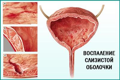 Лікування циститу з кров'ю у жінок, чоловіків, дітей, вагітних: медикаменти, фізіотерапія, народні засоби, дієта (відгуки)