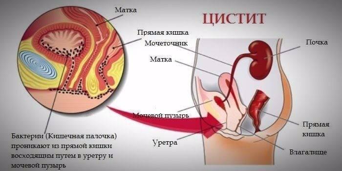 Лікування хронічного циститу у жінок ефективні методи