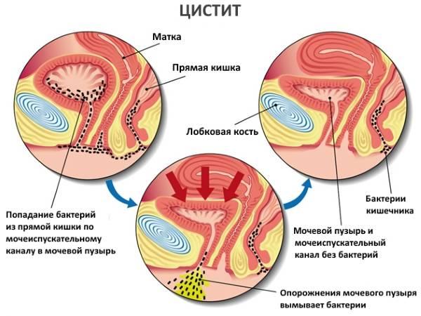 Лікування шийного циститу сечового міхура