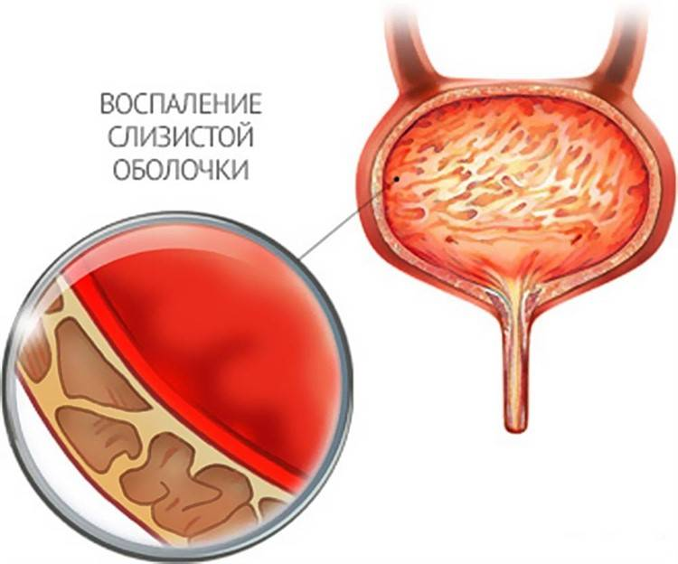Причини появи симптоматика циститу і запалення піхви