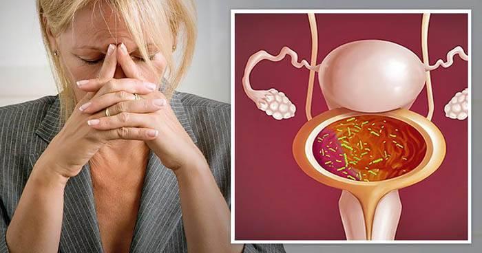 Розвиток і лікування нейрогенного циститу у жінок