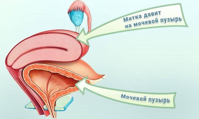 Симптоми та лікування пришийкового циститу