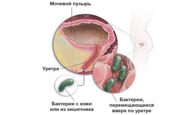 Тривалість лікування хронічного циститу антибіотиками
