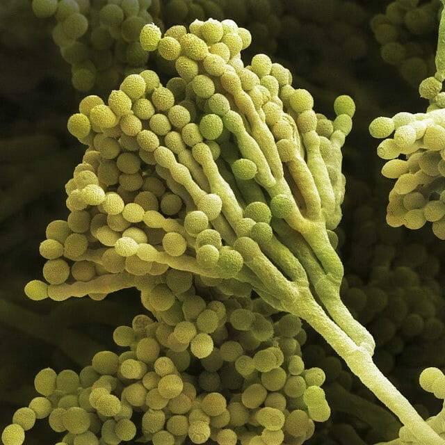 Тривалість прийому антибіотиків при циститі