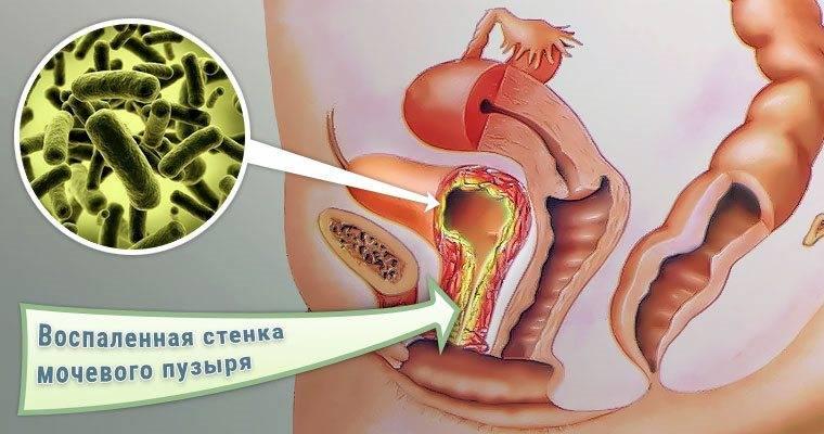 yak bakter viklikayut cistit u zh nok 1 - Які бактерії викликають цистит у жінок