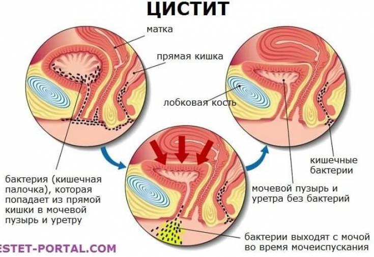 Як приймати цистон при хронічному циститі
